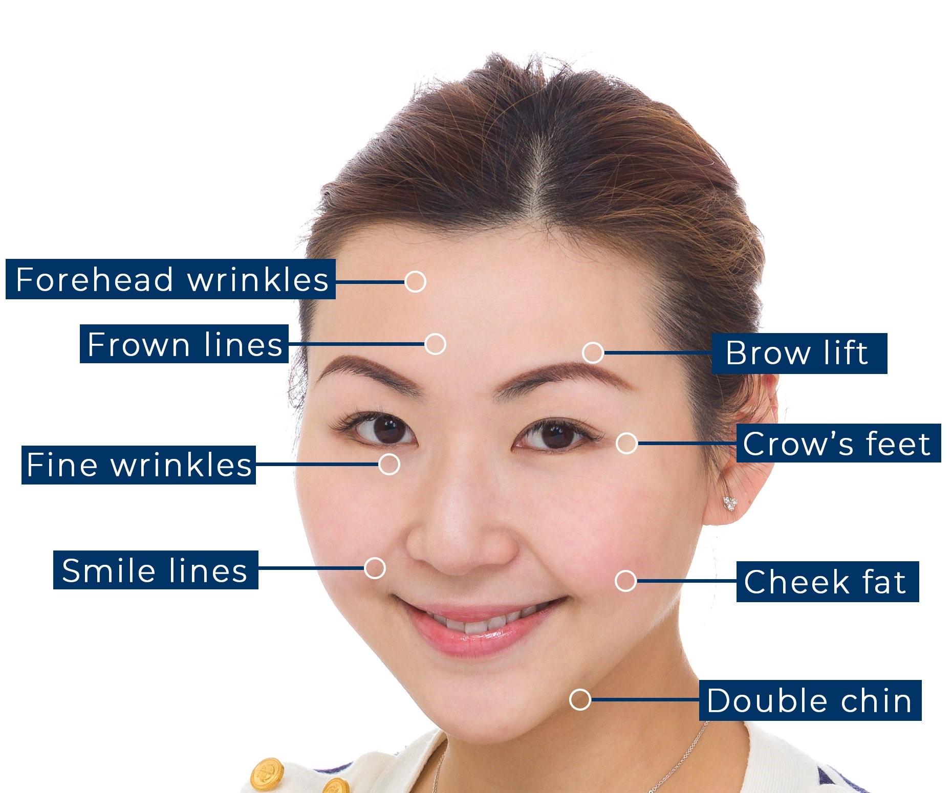 Công nghệ này giúp nâng cơ, trẻ hóa da, tăng sinh collagen làm thay đổi làn da lão hóa trở nên trẻ hơn đến 10 tuổi.