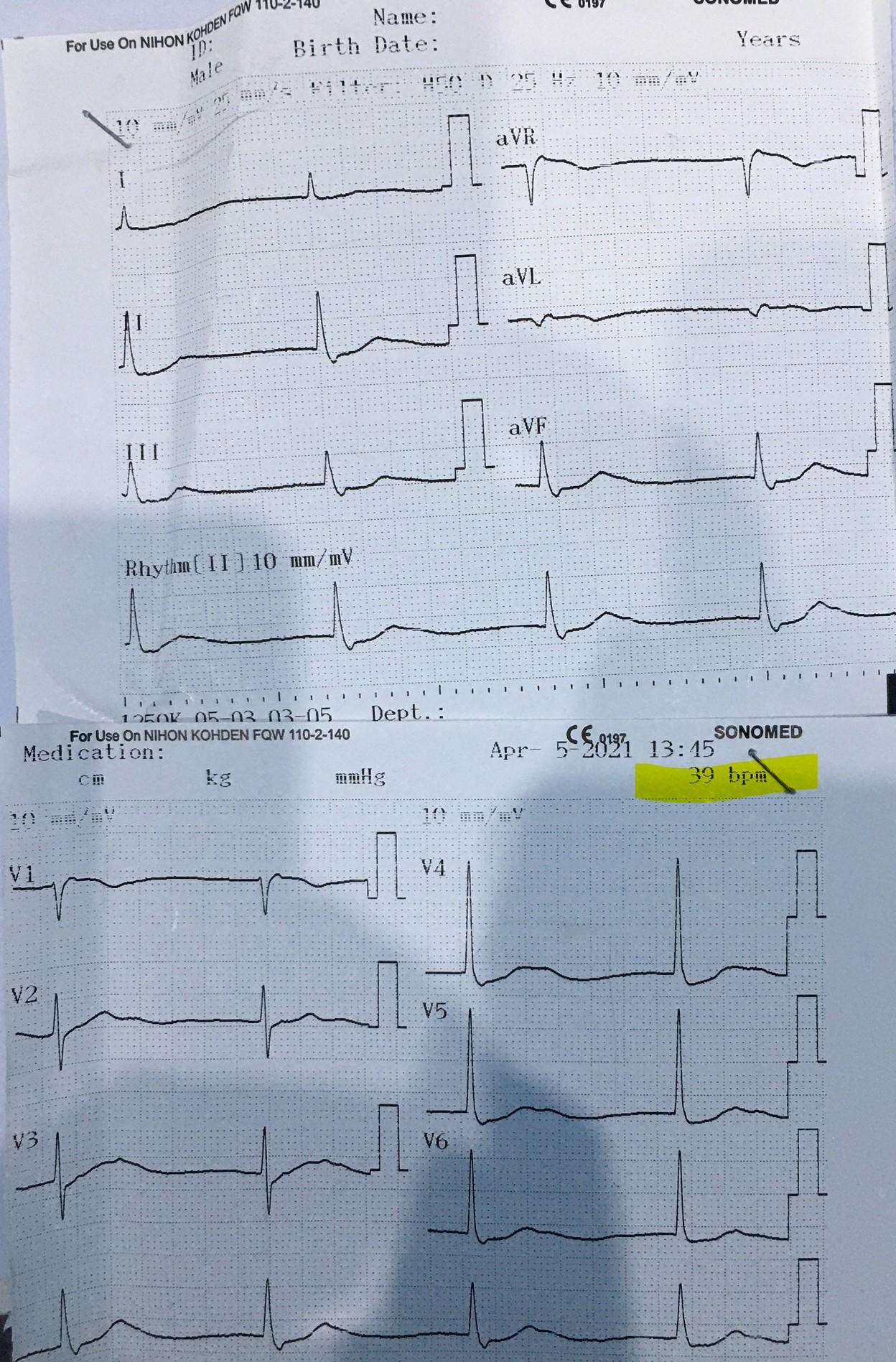 Can thiệp mạch vành cứu sống bệnh nhân nhồi máu cơ tim cấp