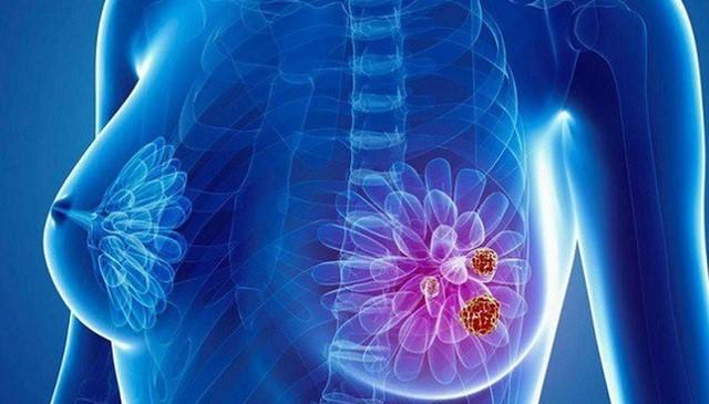 ung thư vú